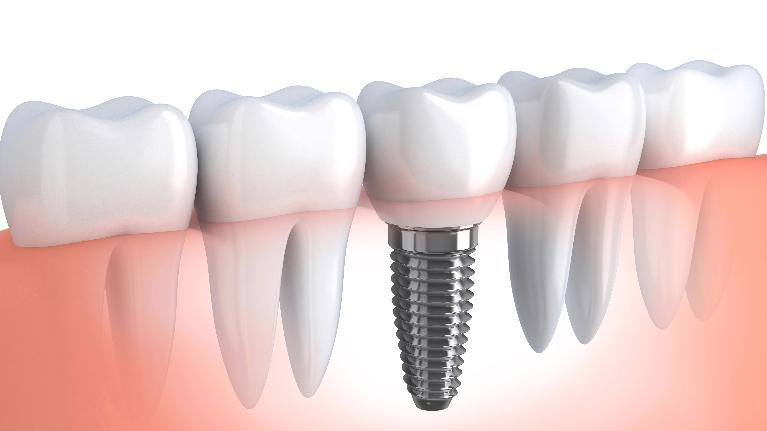 Dental Implants | Denver CO