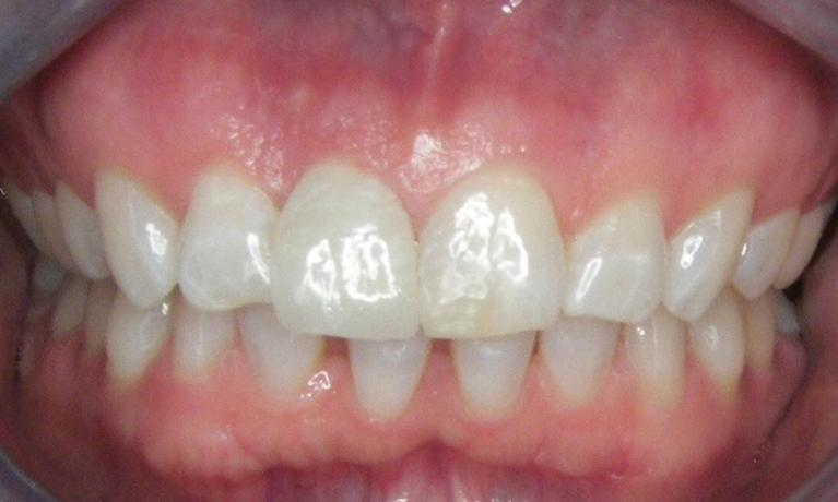 Dental-Implant-and-Bonding-After-Image