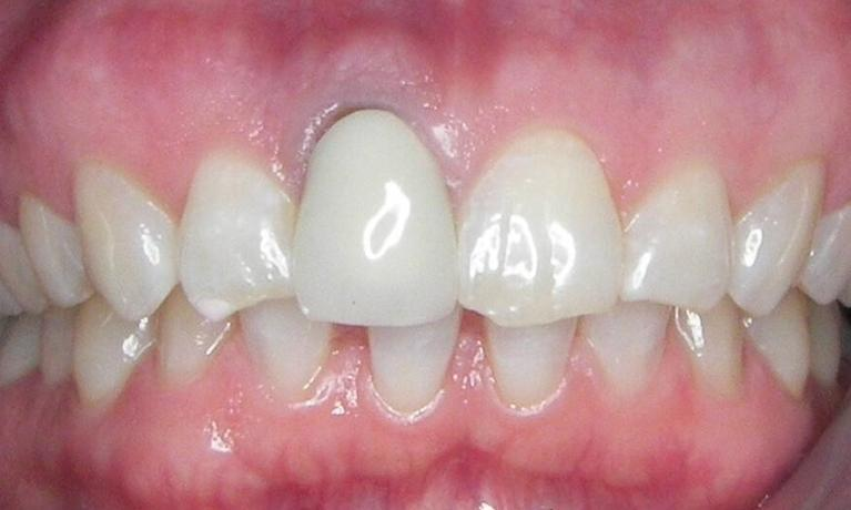 Dental-Implant-and-Bonding-Before-Image